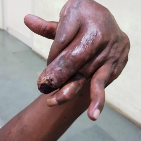 photograph of the hand of the patient