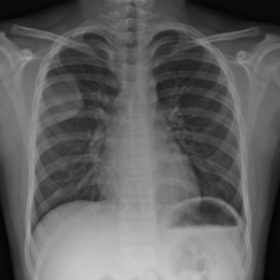 Chest PA radiograph