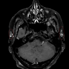 Axial 3.0 Tesla contrast-enhanced T1-weighted Black-Blood imaging
