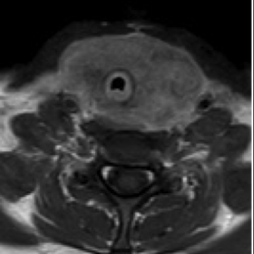 Pre-treament MRI of the neck showing tracheal compression
