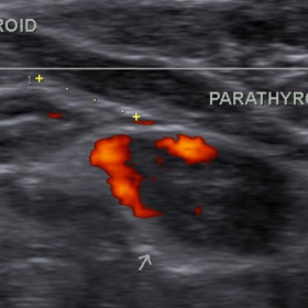 Ultrasound neck with colour doppler