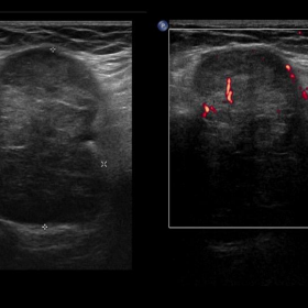 Ultrasound and Doppler ultrasound study