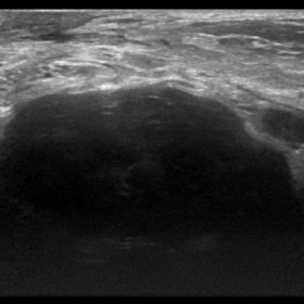 Ultrasound in B-mode and Colour Doppler evaluation