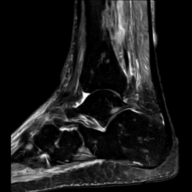 MRI of right ankle