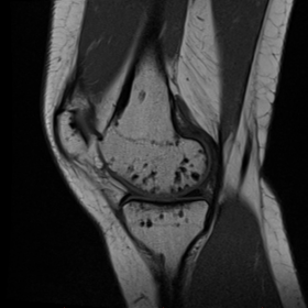 MRI of the right knee