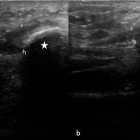 Ultrasound shows thickening of the LCPF insertion on the symptomatic side (between calipers in a), compared to the contralate
