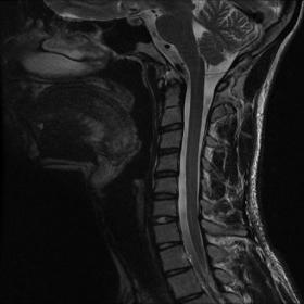 Non-flexion sagittal T2-weighted image shows subtle loss of the normal cervical lordosis. No asymmetrical cord flattening, lo