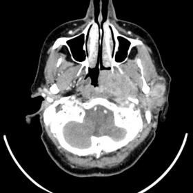Large enhancing mass on the left-side of the nasopharynx, partially obliterating it, involving the parapharyngeal, pre-verteb