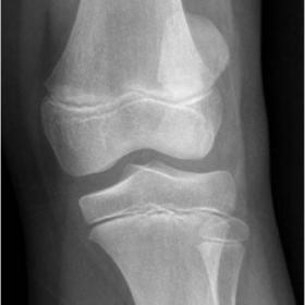 AP radiograph showing laterally dislocated patella.