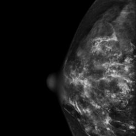 Mammograms of the right breast. The CC (1a) and MLO (1b) views show a dense breast with multiple scattered linear and round o