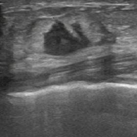 Ultrasound image showing a vertically oriented, irregular, hypoechoic mass with indistinct margins and with no posterior acou