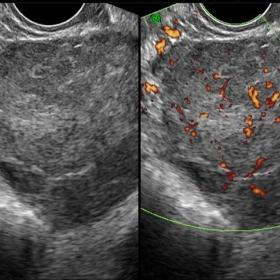 Transvaginal transverse gray-scale and power Doppler ultrasound images of the pelvis demonstrate a solid lobulated adnexal ma