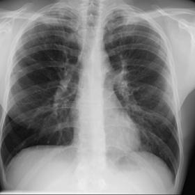 PA and lateral chest radiographs report subtle peripheral opacities with apical predominance
