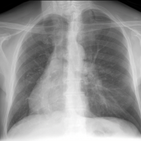 Chest X-ray showing a vertical tubular structure, with crescent morphology in the right hemithorax, posterior to the cardiac