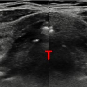 Transversal US of the neck shows focal dilatation of both thyroid laminae with hypoechogenic center (arrows). Trachea (T)