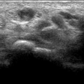 Ultrasound imaging showing a persistent median artery.
