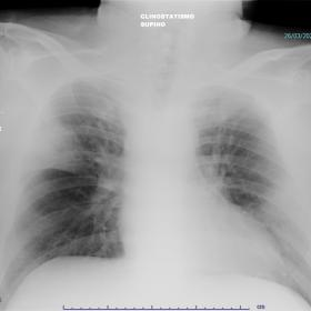 Chest X-ray (antero-posterior view): consolidations in right upper lobe sharply defined at the fissure, and in lower zone of