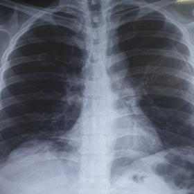 Chest X-Ray PA view showing bilateral pneumothorax (left > right) with single cavitary lesion in right middle zone.