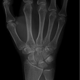 Wrist radiograph reveals a correct alignment of carpal bones, with no clear sign of fracture lines.