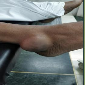 An image showing the presence of a tumefaction on the posterolateral aspect of the right ankle. The skin overlying the swelli