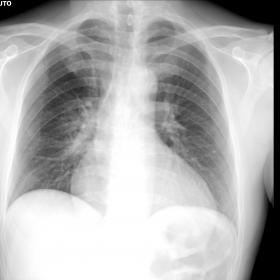 Chest X-ray: the only antero-posterior view performed at bedside did not show obvious parenchymal consolidation or pleural ef