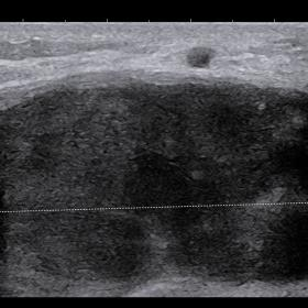 Ultrasound image of the left breast