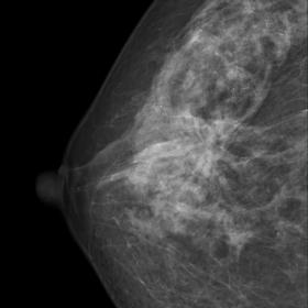 CC view. Heterogeneous dense breasts. An architectural distortion is seen centrally. Moreover, a circumscribed mass with macr