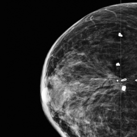Mammogram demonstrates a 3cm oval well circumscribed mass in the medial right breast with post surgical changes noted in the