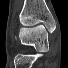 Coronal CT image of the right ankle shows a linear focal density in the soft tissues on the medial side of the medial malleol