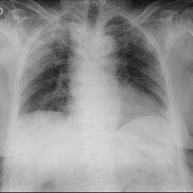 Portable chest X ray performed at the emergency department that shows peripheral infiltrates located in the right superior re