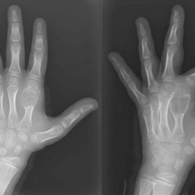 Emergency left hand X-ray. It shows a mostly lithic metaphyseal-diaphyseal bone lesion in the second metacarpal bone, with co