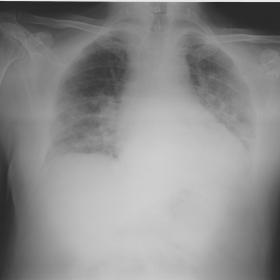Chest X-ray showing patchy airspace opacities in both basal and central pulmonary areas