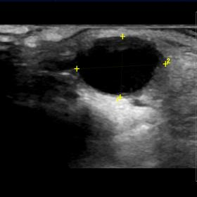 Ultrasound scan of the palpable mass in right preauricular area revealed an anechoic cystic