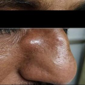 Patient with right swelling in right naso-orbital region