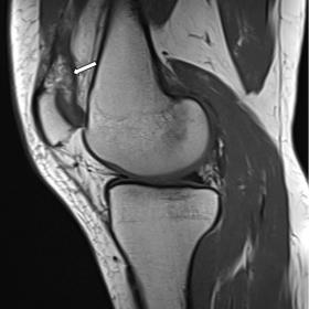 Sagittal T1-weighted MR image shows heterogeneous  signal intensity of the suprapatellar fat pad compared to subcutaneous fat