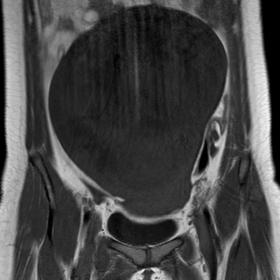 T1W Magnetic resonance imaging (MRI) image  shows a large well defined hypointense abdomino-pelvic lesion.