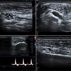 Ultrasound scans of tibio-fibular proximal recess and fibular nerve area show: an anechoic multi-loculated fusiform mass of a