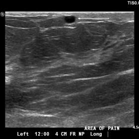 Sonographic examination of the left breast shows a dilated superficial vein with low-level echoes at the area of reported pai