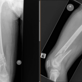 X-ray of distal Femur; AP and lateral views