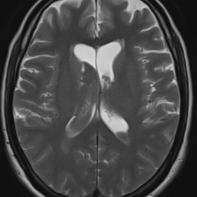 Axial T2W (A)& FLAIR (B) MR images of the brain reveals intraventricular bleed into the bilateral lateral ventricles and suba