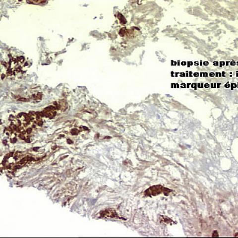 Percutaneous radiofrequency ablation (RFA) of post-menopausal breast