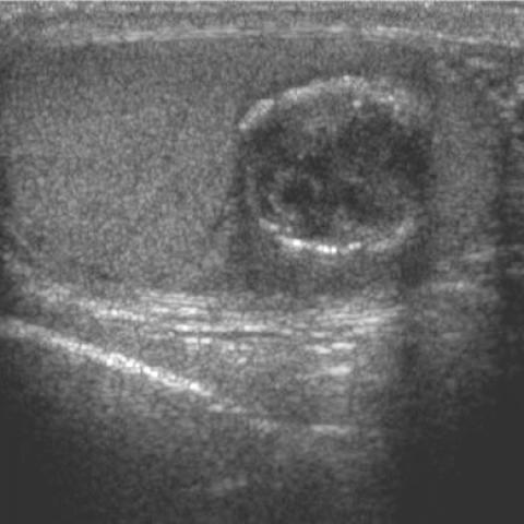 Epidermoid cyst of the testis | Eurorad