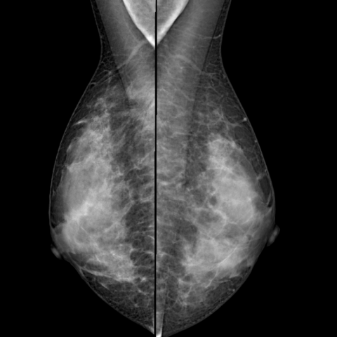 Intraoperative radiotherapy (IORT) for breast cancer and diagnostic  management: a case report | Eurorad