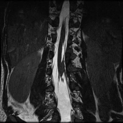 A case of diastematomyelia with minor dysplasias of the