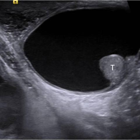 Idiopathic infant pyocele | Eurorad