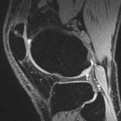 The Painful Bipartite Patella Imaging Evaluation Eurorad Although many forms of patellar fragmentation exist, all except bipartite patella (fig. the painful bipartite patella imaging