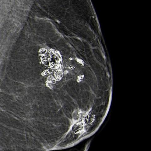 Liponecrosis microcystica calcificans | Eurorad