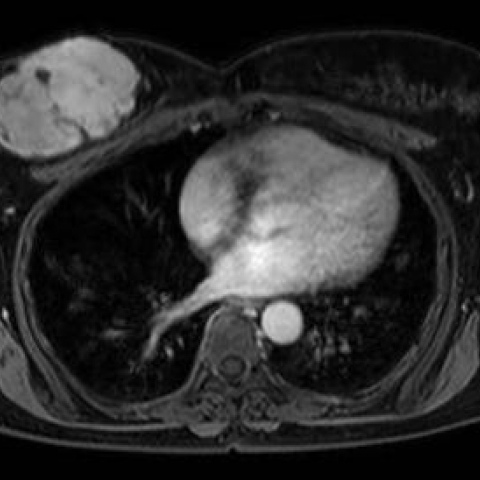 A large benign phyllodes tumour in a 56-year-old woman: a