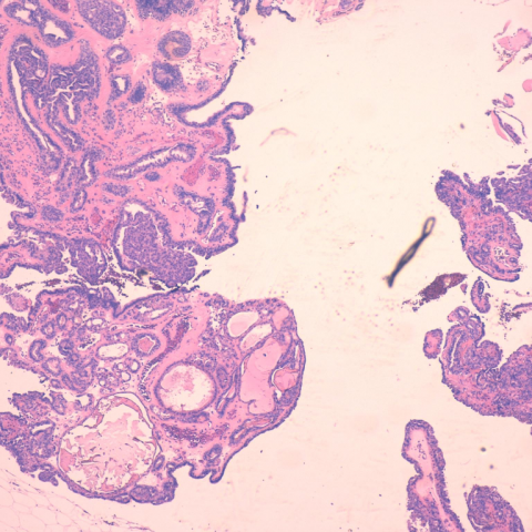 intracystic papilloma means)