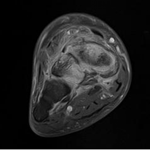 Imaging findings in a case of navicular-medial cuneiform